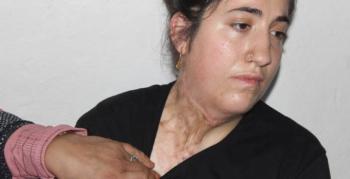 Vücudu yanan genç kız tedavi olmak için yardım eli bekliyor